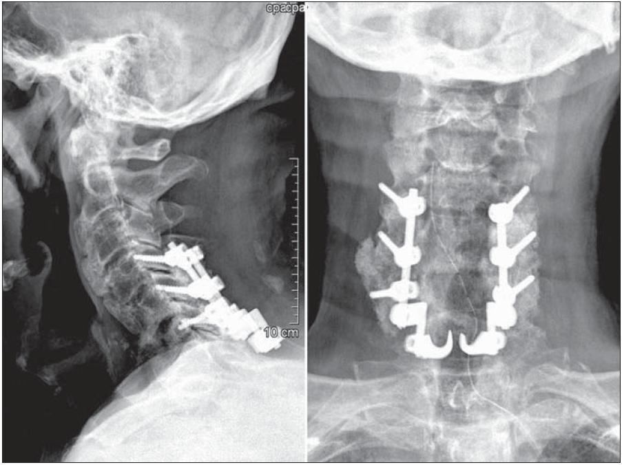 Radiologický nález po první operaci: zadní stabilizace užívá fixaci laterálních mas C4, C5 a C6 a sublaminární háčky C7 k tomu, aby zajistila neutrální anatomické postavení krční páteře.