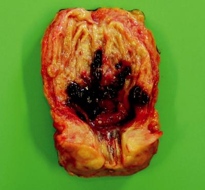 Rozstřižený močový měchýř s prokrvácenou sliznicí na zadní stěně, u 70letého muže 10. den po zavedení PK – současně benigní hyperplazie prostaty a koncentrická hypertrofie stěny měchýře (zmenšeno 0,6×)