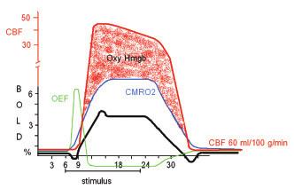 Proměnné mozkového průtoku při náhlé stimulaci v experimentu funkční magnetické rezonance.