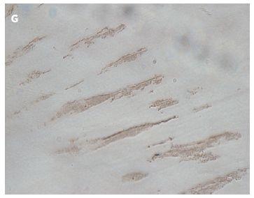 Obr. 3G Imunochemický průkaz kardiaktropinu u linie Ze003 vystavené 5-azacytinu