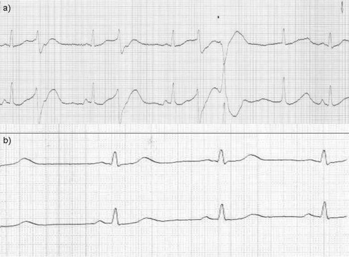 Elektrokardiogram znázorňující patologickou křivku s bigeminií jako obraz výrazné arytmie při intoxikaci theofylinem (a) a normalizace po zvládnutí akutního stavu (b)