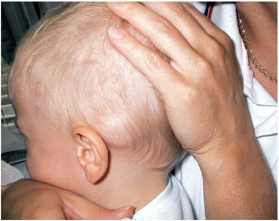 Retroaurikulárne vyklenutie vľavo u 14-mesačného chlapca.