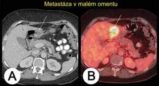 Metastáza karcinomu ovaria v oblasti omentum minus při kombinovaném vyšetření PET/CT