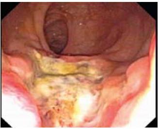 Ulcerózní forma. Fig. 3. Ulcerous type.