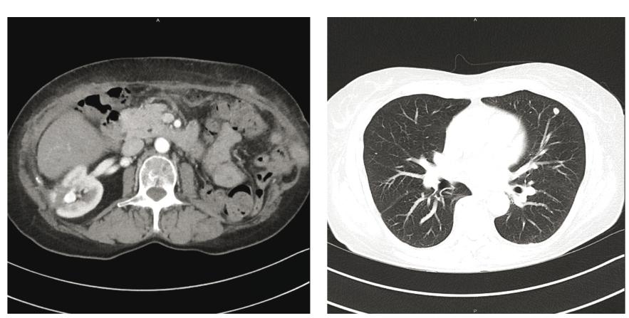 Obr. 1 a 2: Restagingové CT po operaci: nové ložisko v místě po resekci tumoru vpravo, meta ložisko v uzlině retrokaválně a progrese nádorového postižení plic