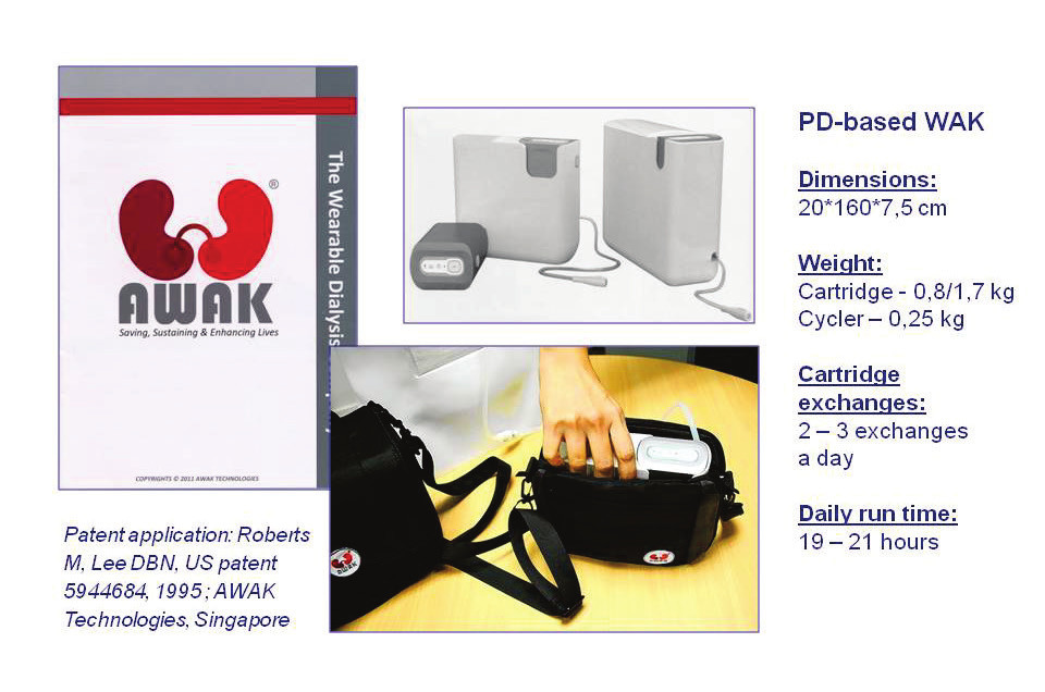 Fig. 8: PD-based WAK of AWAK Technologies, Singapore – the first WAK to be commercialized (Europe - CE mark still needed, US – FD clearance needed), (www.awak.com/wearable_dialysis ).
