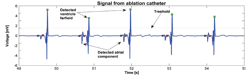 Activation wave detection using thresholding. Atrial component of the signal in front of the ventricle far-field is selected for further analysis.