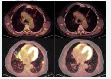 Obr. 3 a 4. PET/CT studie z ledna roku 2014 a července roku 2014