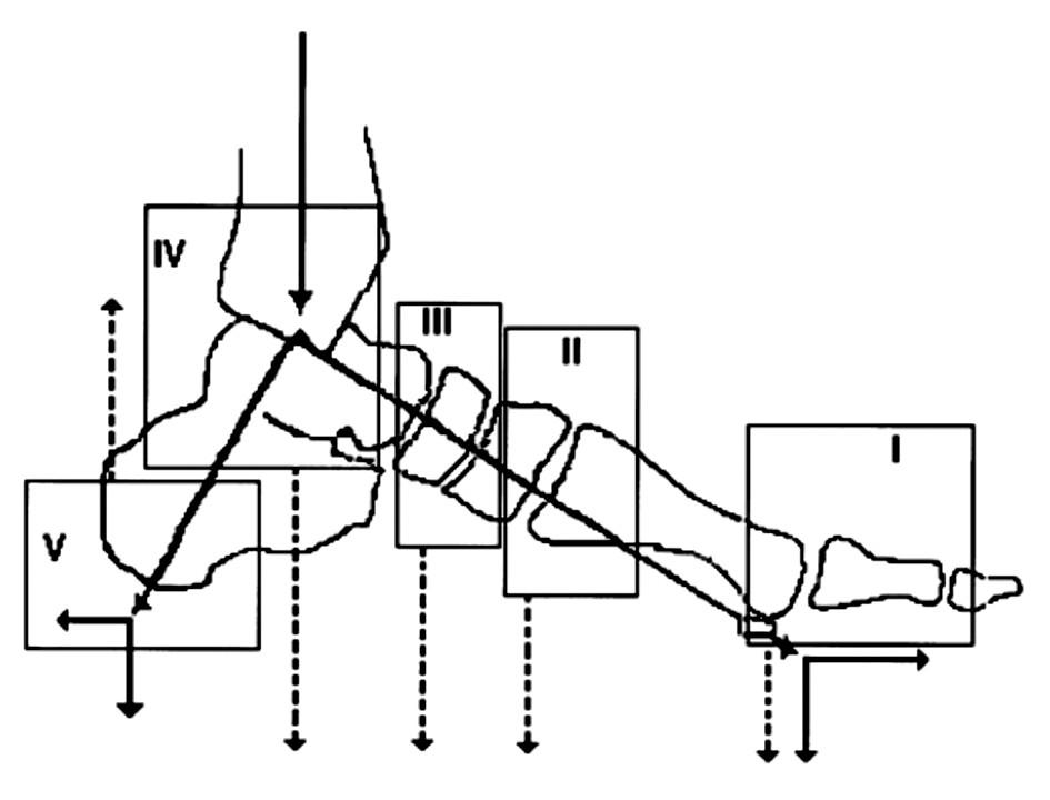 Schéma 2. Klasifikace Charcotovy osteoartropatie podle Sanderse. Tučná čára znázorňuje normální distribuci tlaků vnoze. Tečkované čáry zobrazují distribuci tlakě u rozličných typů Charcotovy osteoartropatie. Typ I – Charcotova osteoartropatie vmetatarzofalangeálních a interfalangeálních kloubech, Typ II vtarzometatarzálních kloubech, Typ III vtarzálních kloubech, Typ IV – v hlezenném kloubu a Typ V – v patní kosti.