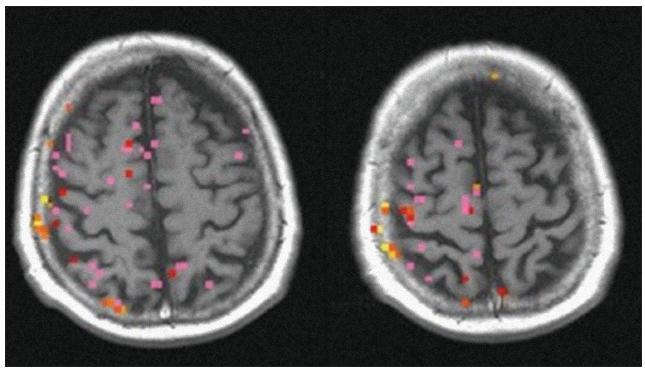 Funkční MR se statistickým hodnocením a znázorněním aktivního kortexu před výkonem – zobrazující poruchu CVR vlevo.