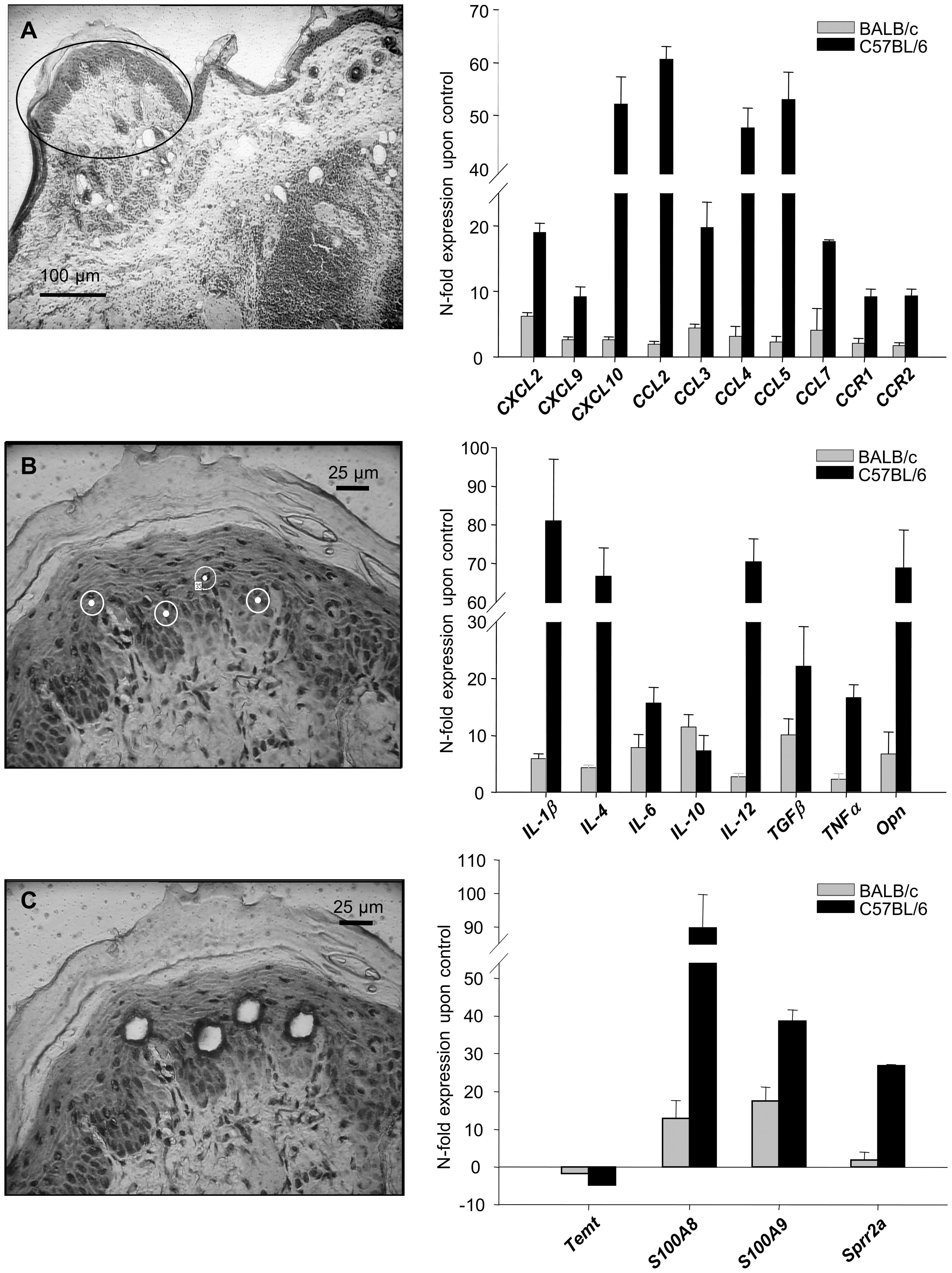 Analysis of gene in keratinocytes isolated from <i>L. major</i> infected skin.