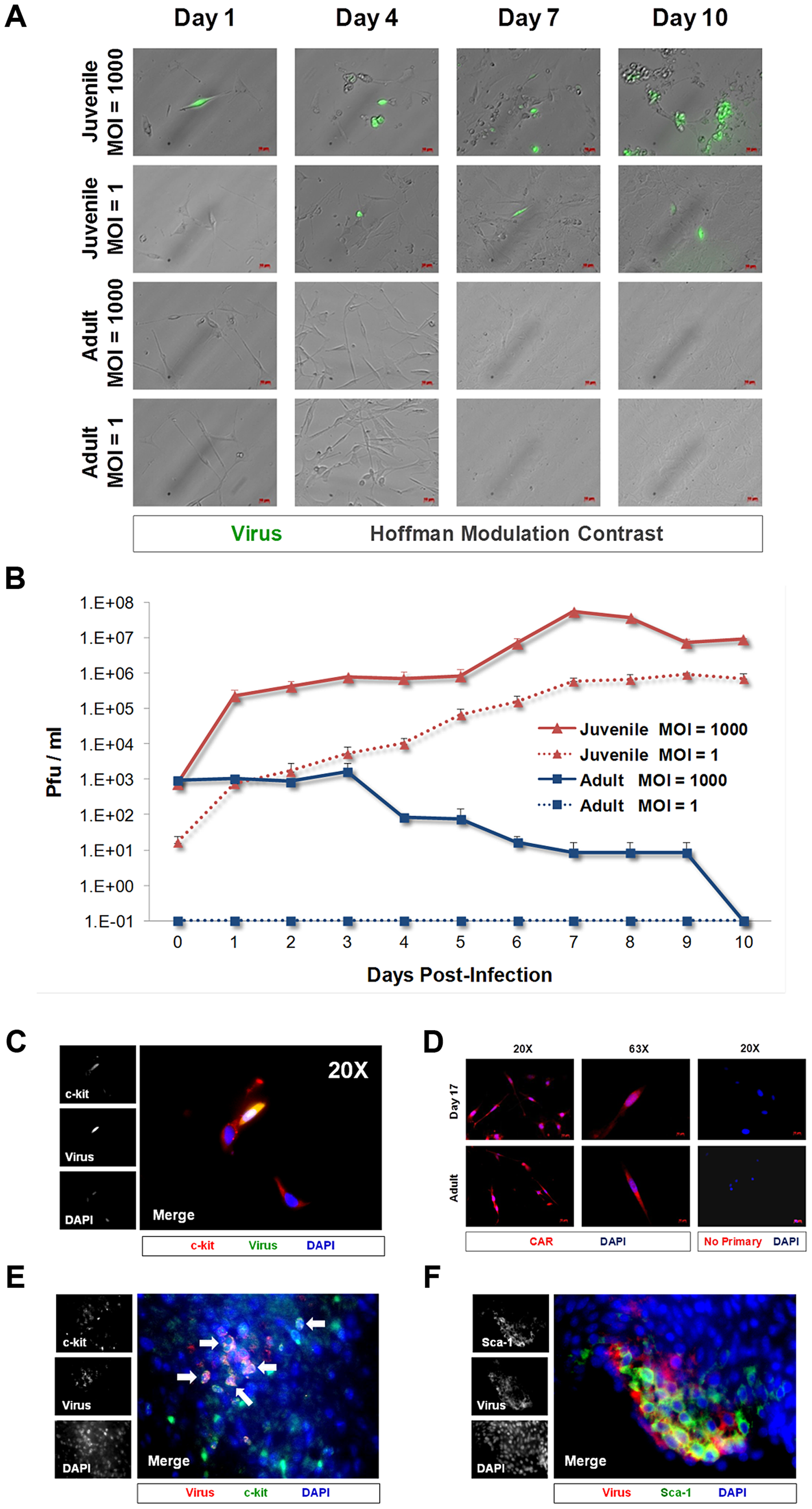 CVB3 productively infected juvenile cardiac-derived c-kit+ cells grown in culture and in the juvenile heart.