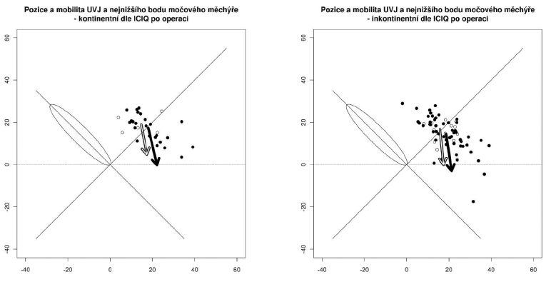 Pozice a pohyblivost UVJ (světlá šipka) a bodu N ( tmavá šipka) u žen kontinentních a inkontinentních po operaci