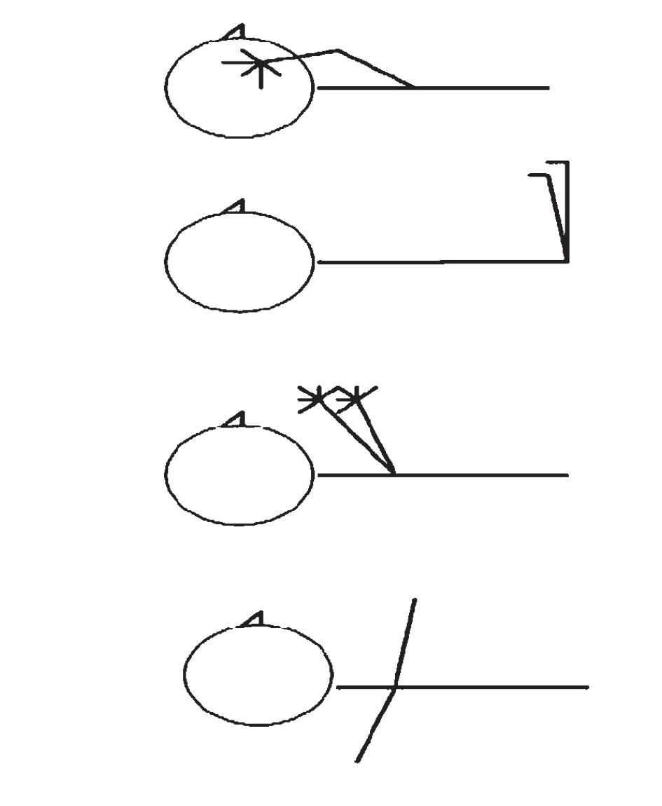 """Schéma 1. Specifické pohyby končetin: a) ruka na tváři, b) """"sezení"""" ve vzduchu, c) salutování, d) """"letadlo""""."""