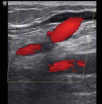 Ultrazvukový průkaz patofyziologie – refl ux v safénopopliteální junkci, vlevo fyziologický dopředný tok, vpravo refl ux při kompresi stehna nad sondou (barevné mapování krevního toku).