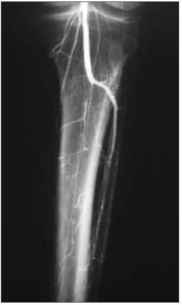 Angiografie – fragmentace bércového řečiště, jediná bércová tepna.