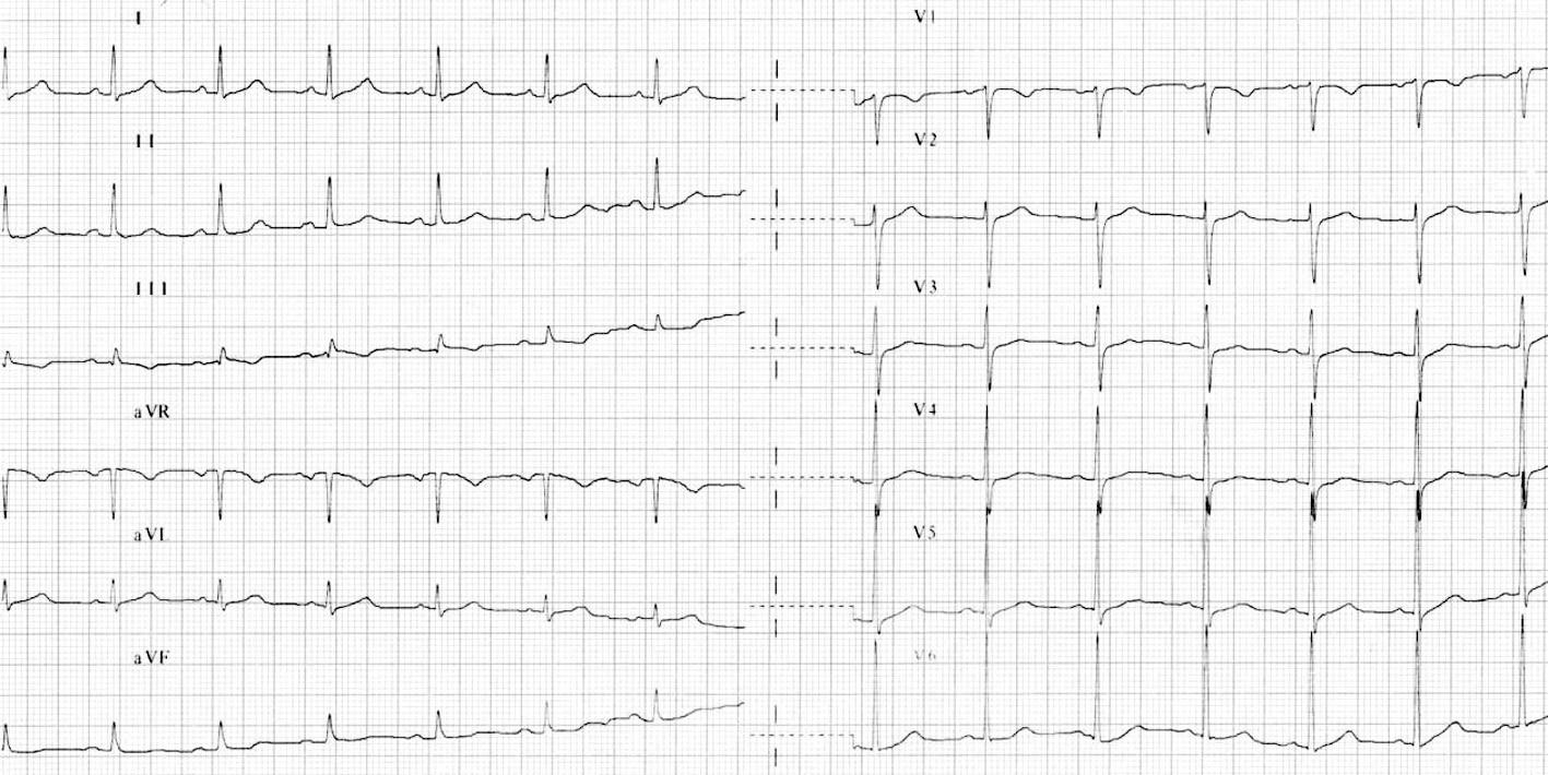 Obr. 3A. EKG-křivka z první hospitalizace (před IM).