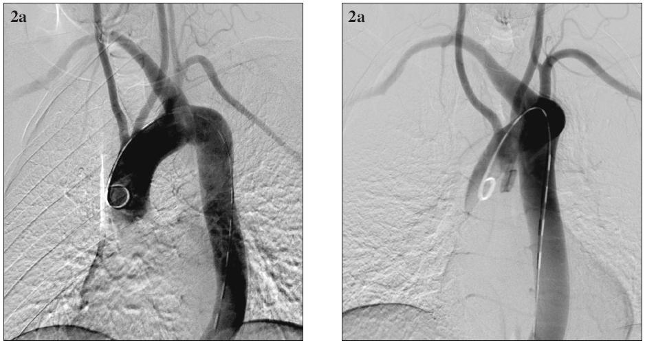54-ročný muž s aneuryzmatickou dilatáciou anomálne odstupujúcej arteria subclavia dextra (arteria lusoria) a aneuryzmou Kommerellovho divertikla. Digitálna subtrakčná angiografia aortálneho oblúka a supraaortových vetiev. Obr. 2a. predozadná projekcia; Obr. 2b. šikmá projekcia. Fig. 2. A 54- year old male with aneurysmal dilatation of an abnormal arteria subclavia dextra (arteria lusoria) and with the Kommerell diverticle aneurysm. Digital subtraction angiography of the aortic arch and supraaortic branches. Fig. 2a. A-P view; Fig. 2b. oblique view.