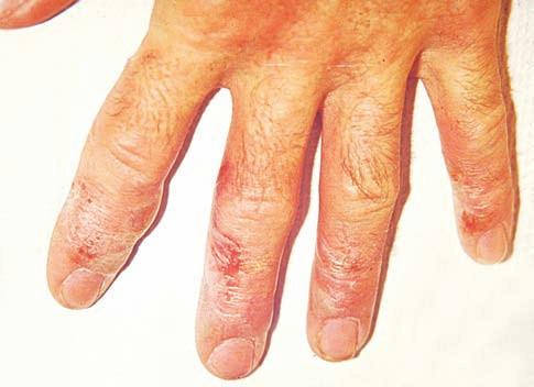 Eczema contactum prof. – epoxidy (lepidlo)