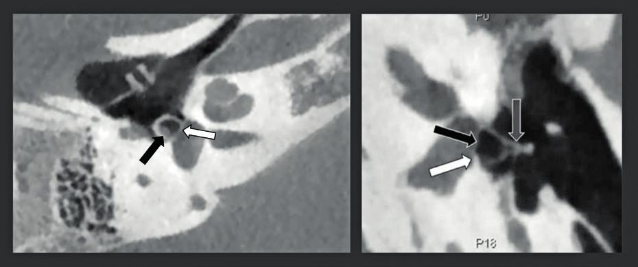 CBCT zdvojená šikmá rekonstrukce snímků středouší s vysokým rozlišením (rozlišení 150 μm) u dvou pacientů s vrozenou vadou středouší.