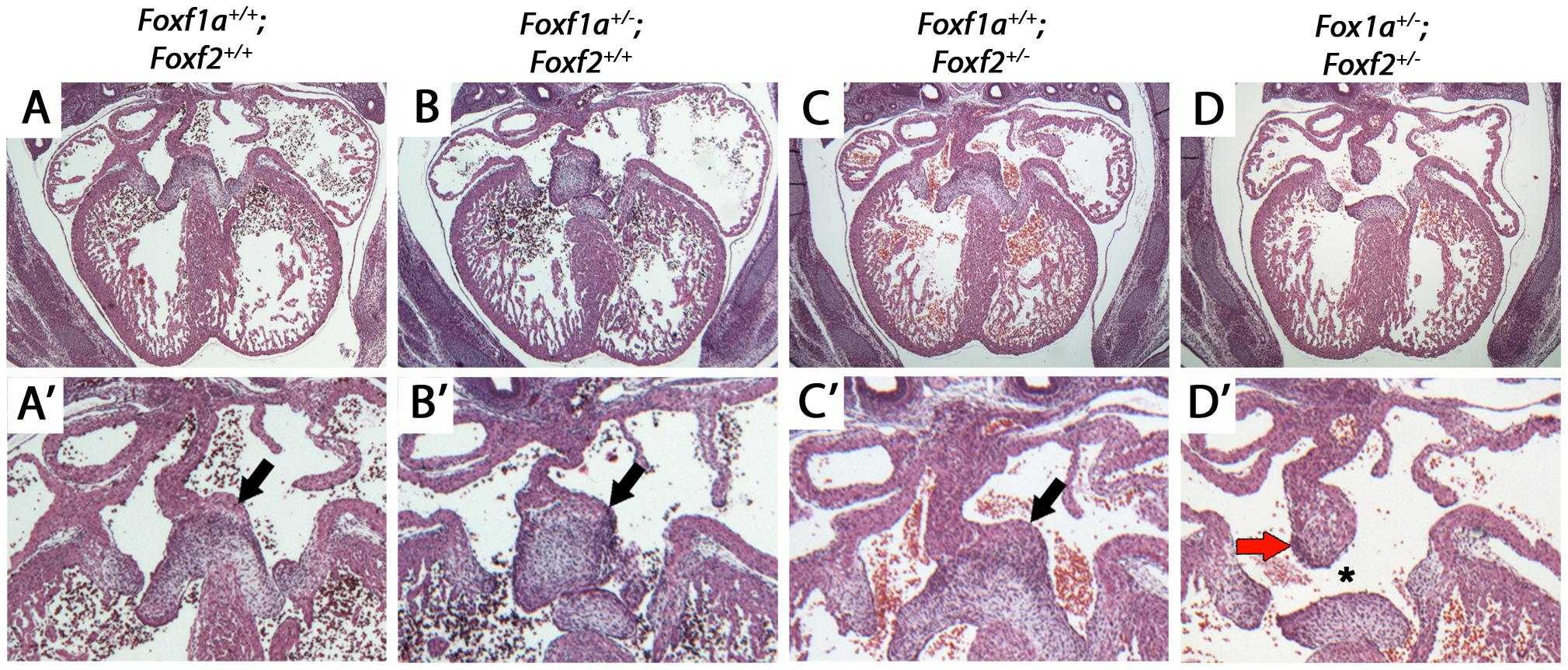 Atrioventricular septal defects in <i>Foxf1a<sup>+/−</sup>; Foxf2<sup>+/−</sup></i> compound heterozygote embryos at E14.5.