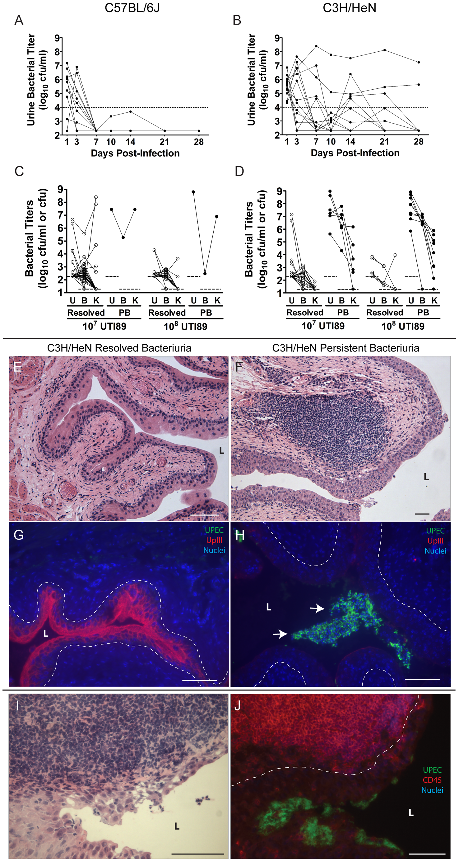C3H/HeN mice develop chronic cystitis in response to UPEC infection in an infectious dose-dependent manner.