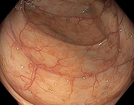 Normální tračník, slizniční lymfatické folikuly v bílém světle (drobná okrouhlá mírně prominující ložiska). Fig. 5. Normal colon, mucosal lymphatic follicles in white light (small circular slightly protruding spots).