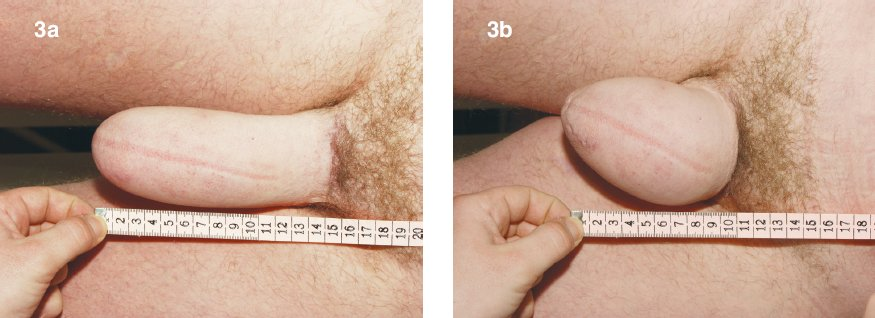 Fig. 3. Measurement of the neo-phallus: a – relaxed, b – contracted