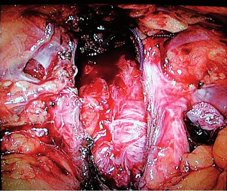 Lůžko po intrafasciální EERP Fig. 1. Prostatic bed after intrafascial EERP