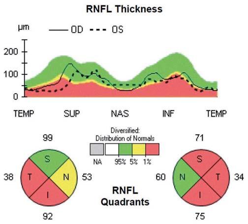 Patologický nález OCT u pacienta s SM po opakovaných atakách ON na oboch očiach v priebehu ochorenia, kde je evidentná významná redukcia hrúbky RNFL vo viacerých kvadrantoch vrátane temporálneho kvadrantu na oboch očiach.