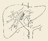 Schéma přímé (direct) intrahepatální portosystémové spojky (DIPS). Fig. 2. Diagram of direct intrahepatic portosystemic shunt (DIPS).