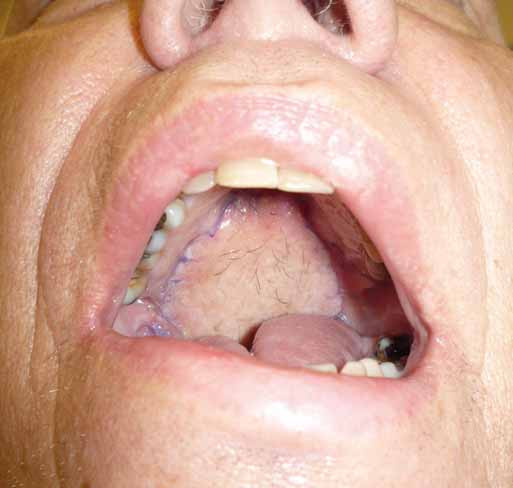 Pohled do dutiny ústní 5 týdnů po výkonu.