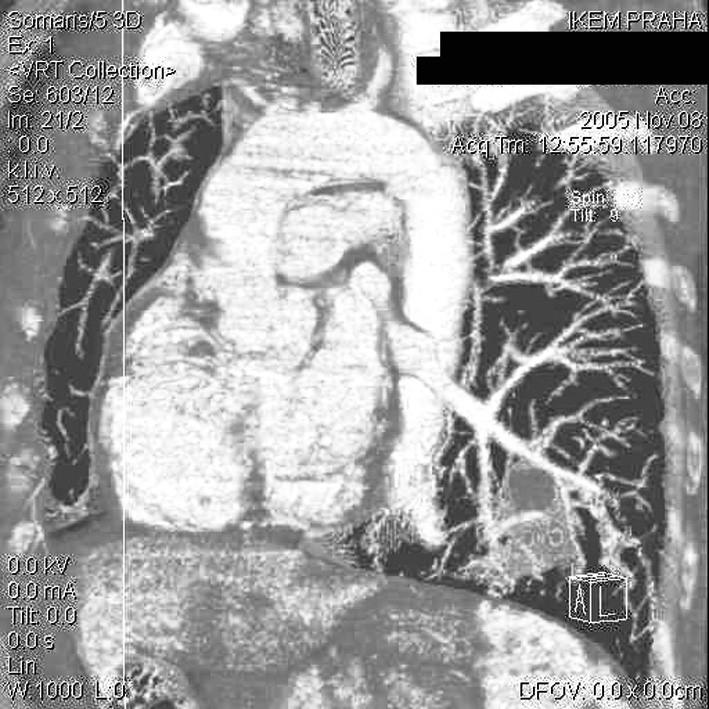 Angio CT