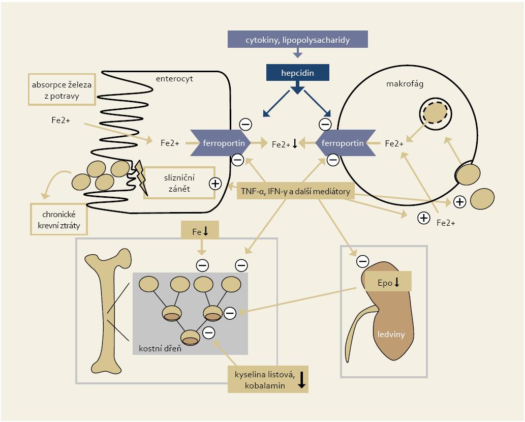 Zjednodušené schéma patofyziologických mechanizmů vedoucích k anémii u IBD pacientů (Weiss a Gasche, 2010). Fig. 1. Simplified chart of pathophysiological mechanisms leading to anaemia in IBD patients (Weiss and Gasche, 2010).