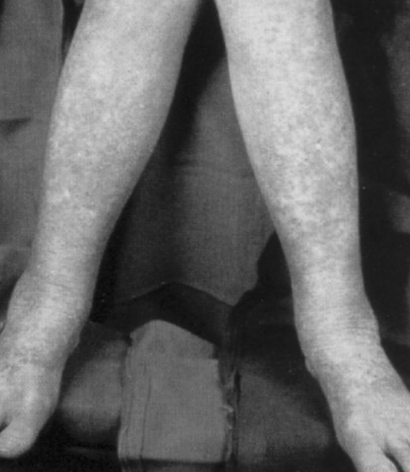 Projevy hemoragické diatézy (FN Brno)