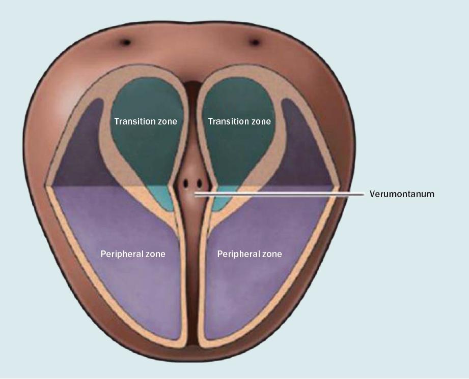 Tranzitorní zóna prostaty [3].