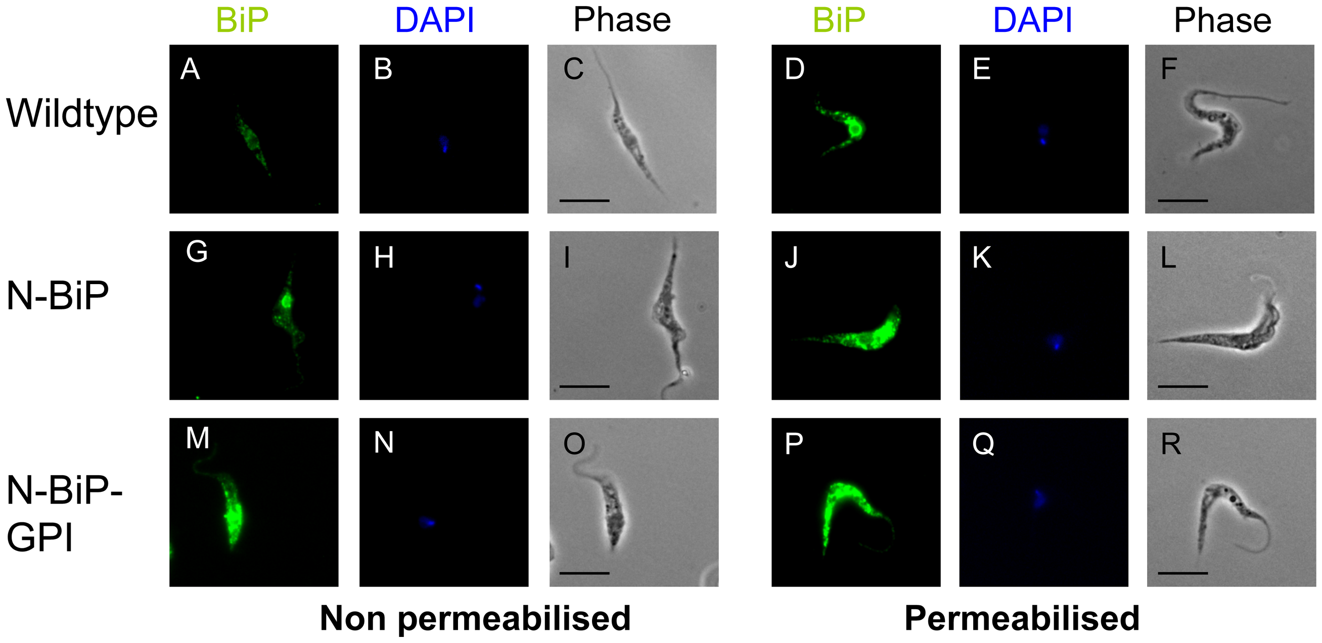 Cellular location of expressed N-BiP and N-BIP-GPI fusion proteins.