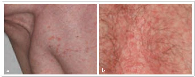 Fig. 1a, 1b. Cutaneous manifestations of LCH: disseminated brown papules on regions of increased sweating.