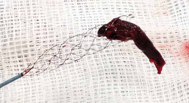 Fotografie stent-retrieveru s embolem po vytažení z M1 úseku ACM l.dx.