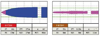 Obr. 1b Tromboelastometrické krivky pred podaním a po podaní antitrombínu pri non-overt DIK