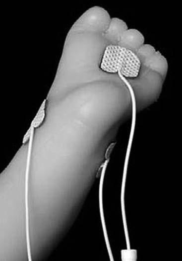 Schéma zapojení elektrod pro měření elektrické kožní vodivosti u dítěte. Fig. 1. Wiring AgCl adhesive electrodes.