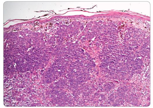 Histologický vzhled nodulárního melanomu – populace zjevně maligních elementů roste difuzně v koriu, složka v oblasti dermo-epidermální junkce chybí. Na periferii nádorových ostrůvků je vidět lymfocytární reakce (hematoxylin-eosin; 100×).