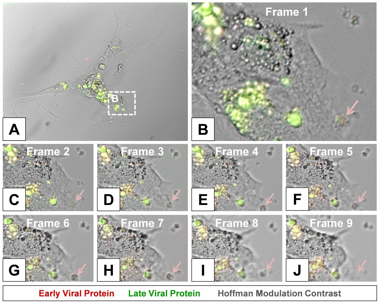 Time lapse photography frames showing microvesicle egress from a Timer-CVB3-infected cell.