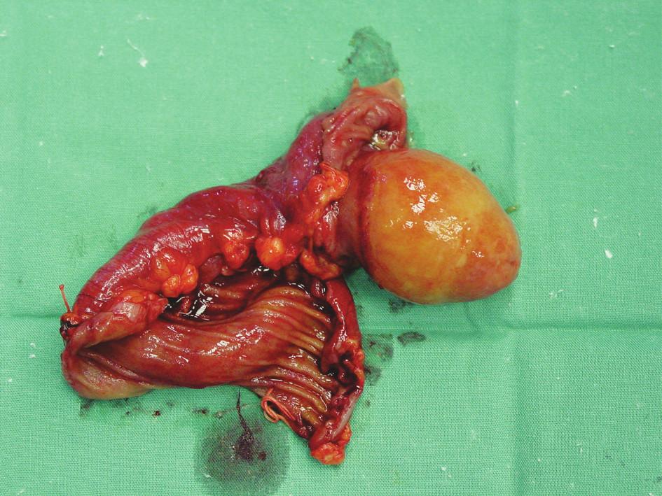 Rozstřižený preparát tenkého střeva s tumorem