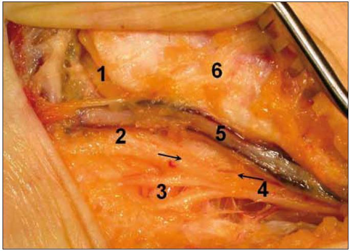 Peroperační fotografie tarzálního tunelu po discizi retinaculum flexorum vpravo u pacienta 4. 1 – n. plantaris medialis, 2 – n. plantaris lateralis, 3 – rami calcanei mediales, 4 – n. tibialis, 5 – cévní svazek, 6 – distální tibie, šipky ukazují úsek oploštění nervu