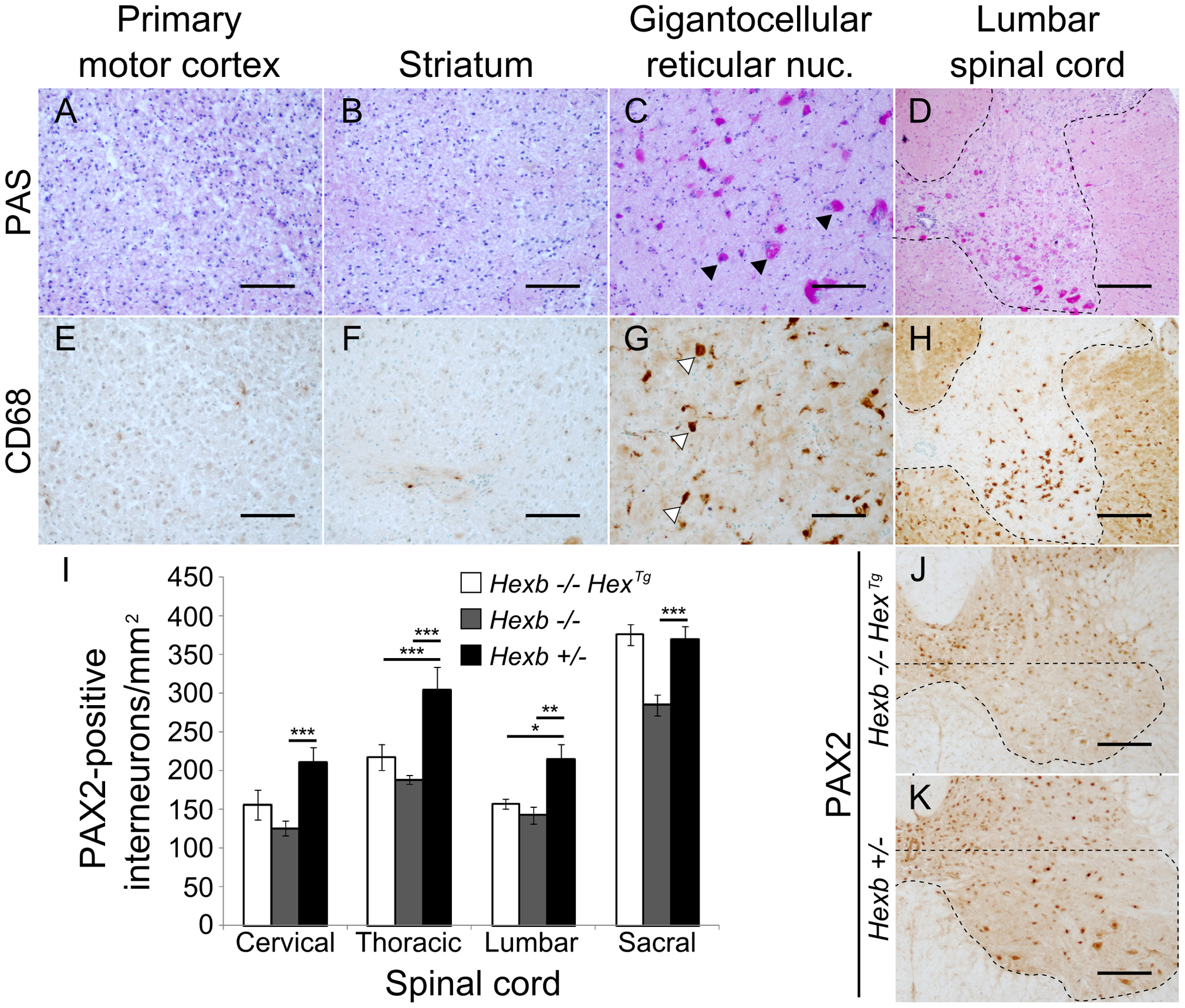 Localized glycolipid storage and microgliosis in <i>Hexb−/−Hex<sup>Tg</sup></i> mice at humane endpoint.