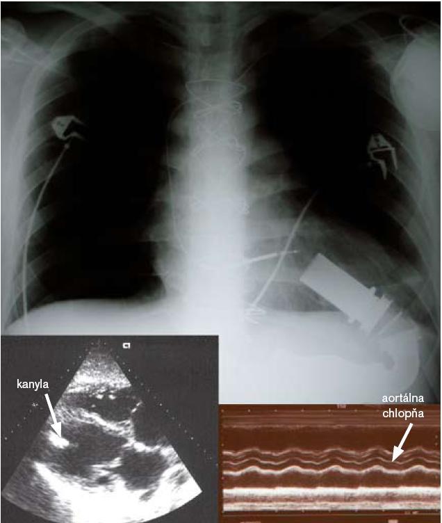 Obr. 4. Röntgenová snímka hrudníka pacientky s implantovaným axiálnym mechanickým podporným systémom DeBakey. Vidno röntgen-kontrastnú kanylu v hrote ľavej komory a na ňu nasadajúcu pohonnú jednotku, distálnejšie je uložený prietokomer. Kanyla vyúsťujúca do aorty je röntgen-nekontrastná. Dolu echokardiografický obraz v M mode vidno permamentane zatvorenú aortálnu chlopňu, 2D kanyla v hrote ľavej komory.
