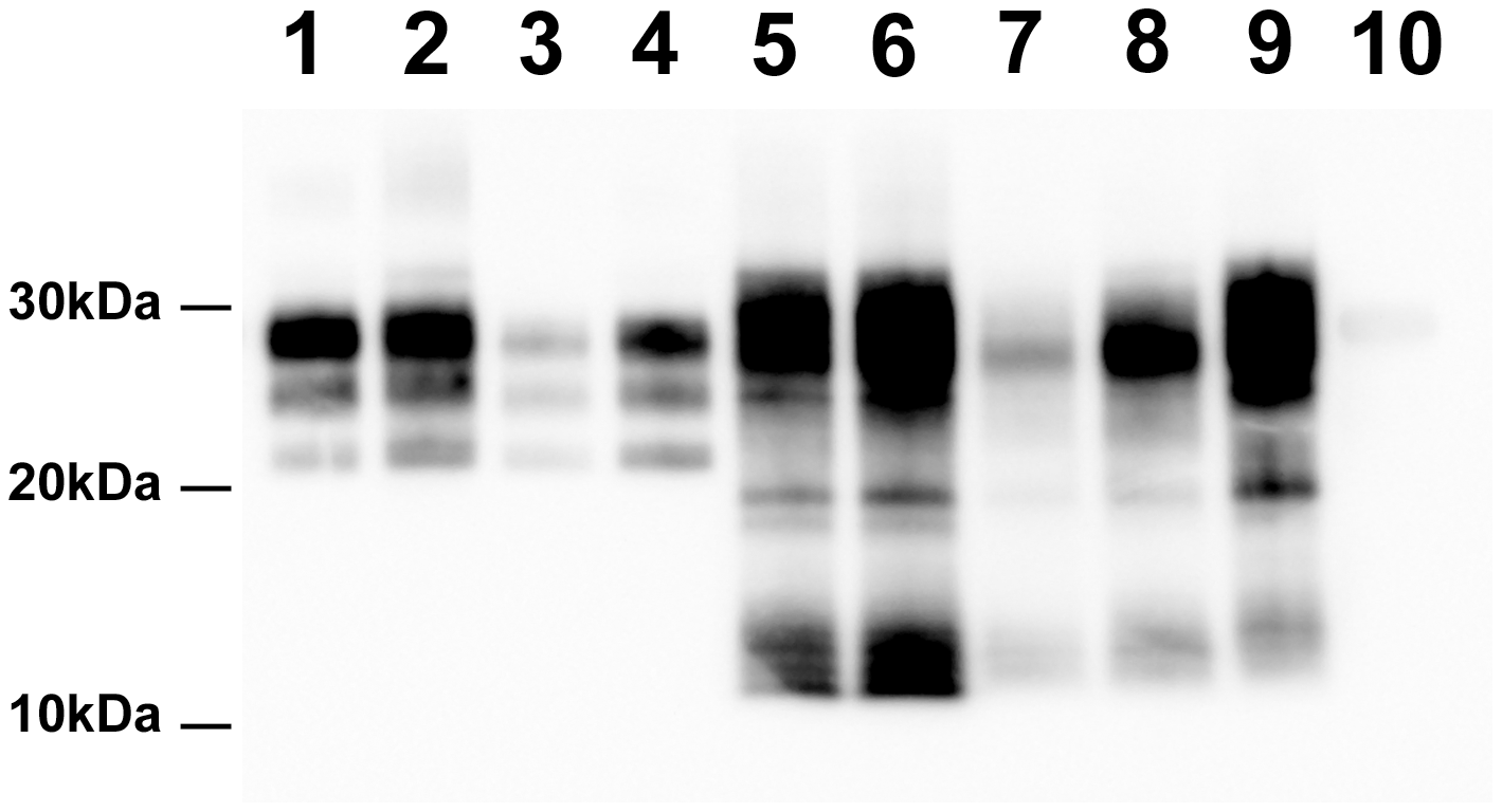 PrP<sup>Sc</sup> Western Blot detection in sheep and <i>tg338</i> mice inoculated with Atypical/Nor98 scrapie and classical scrapie tissues (10% tissue homogenate).