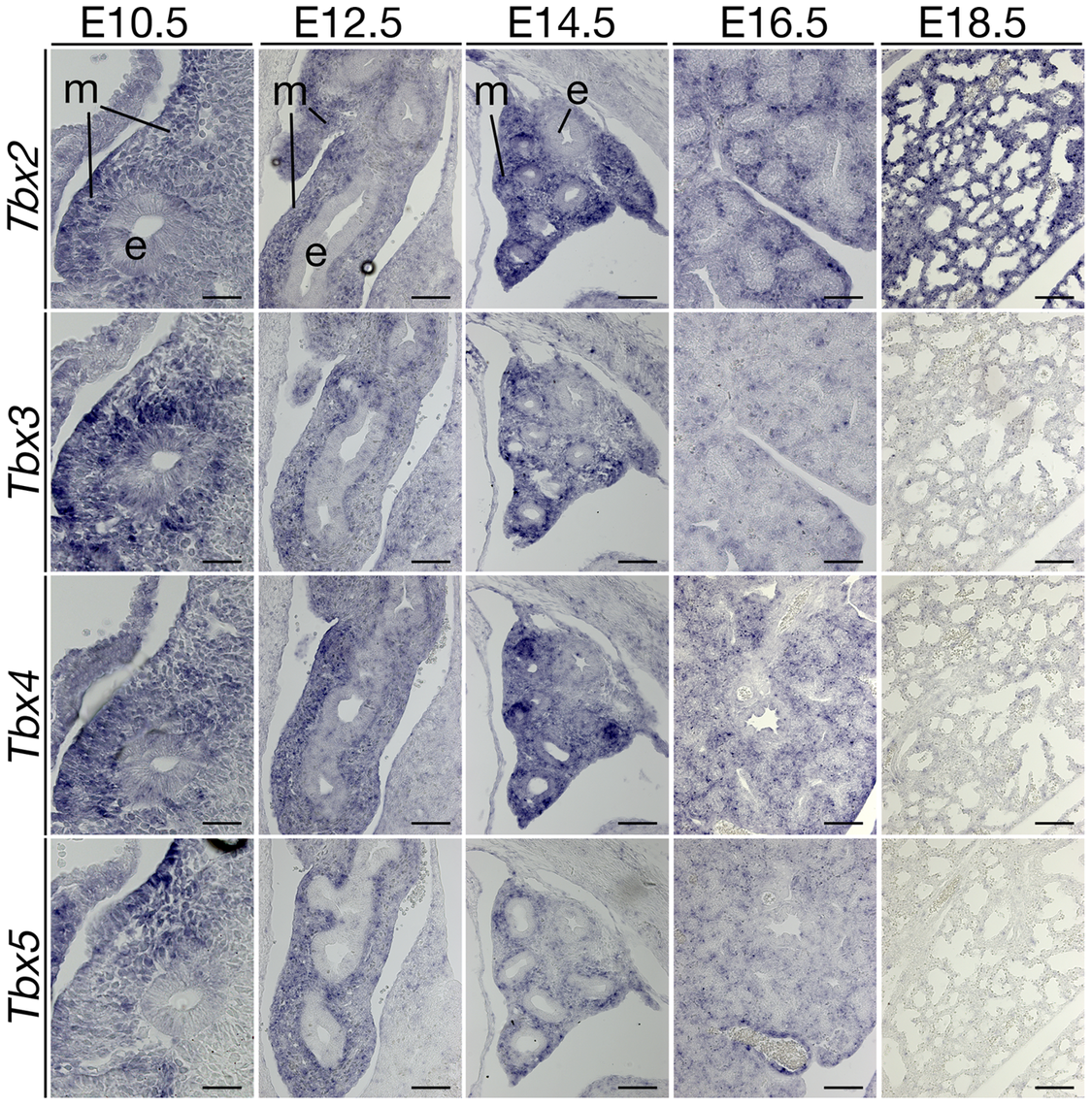 Expression analysis of T-box genes suggests a non-redundant role of <i>Tbx2</i> in late lung development.