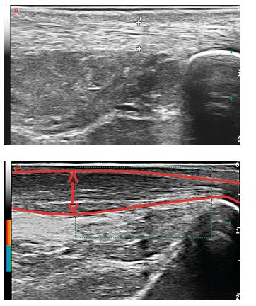 Ultrazvukový obraz Achillovy šlachy.